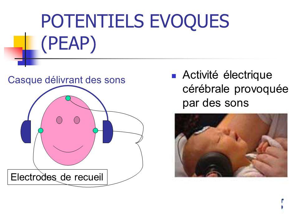 POTENTIELS EVOQUES (PEAP) Activité électrique cérébrale provoquée par des sons Electrodes de recueil Casque délivrant des sons