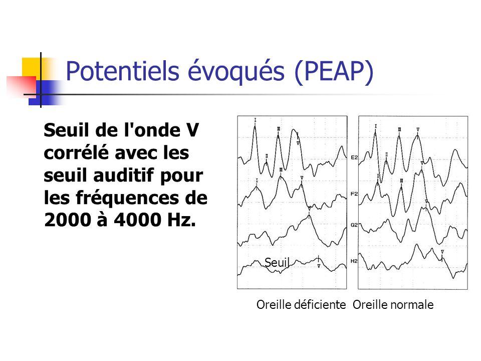 Potentiels évoqués (PEAP) Seuil de l onde V corrélé avec les seuil auditif pour les fréquences de 2000 à 4000 Hz.