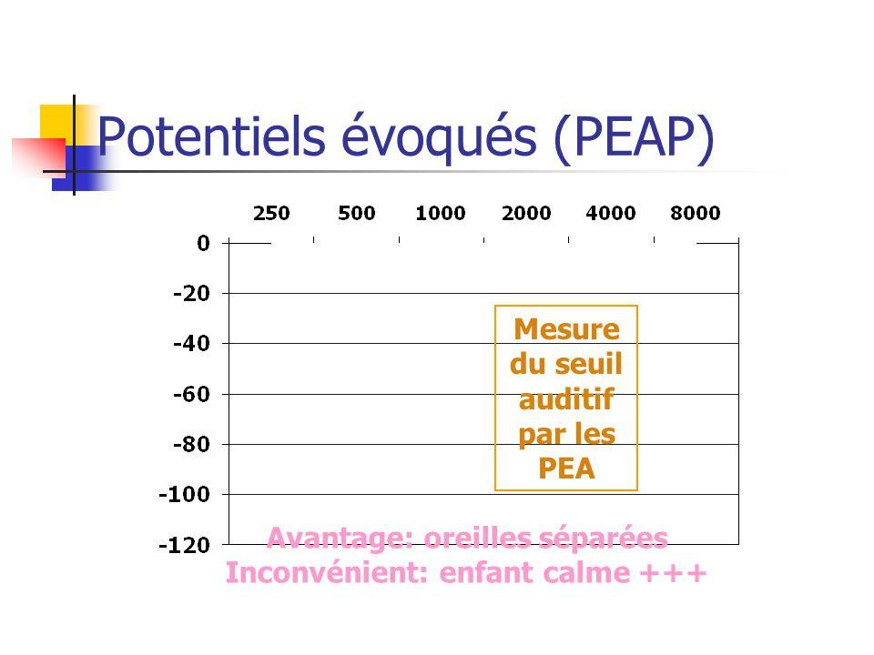 Potentiels évoqués (PEAP) Mesure du seuil auditif par les PEA Avantage: oreilles séparées Inconvénient: enfant calme +++