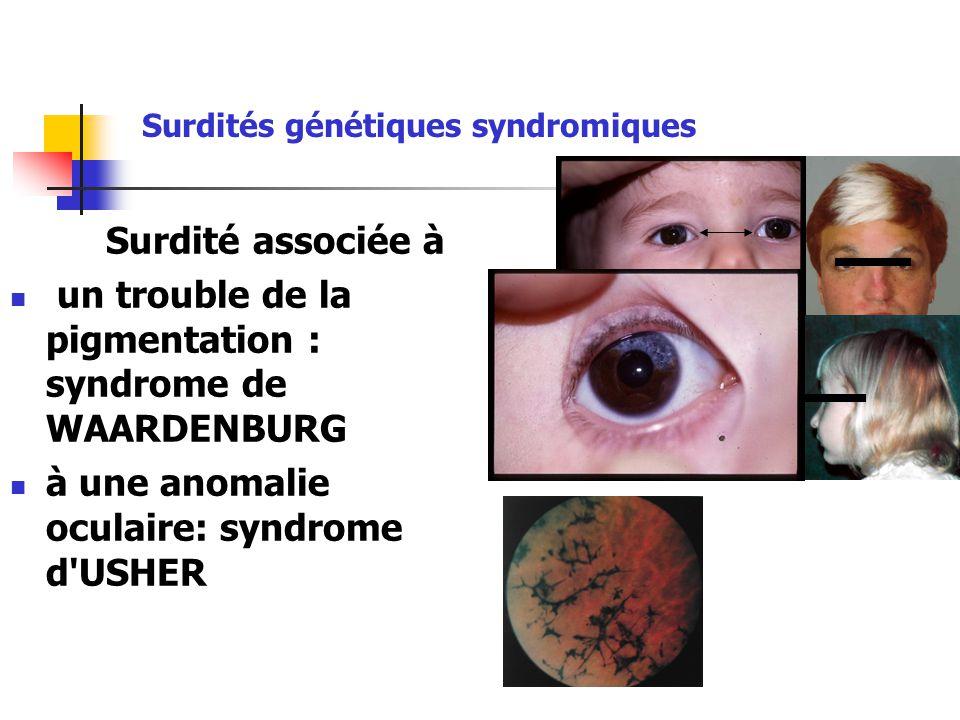 Surdité associée à un trouble de la pigmentation : syndrome de WAARDENBURG à une anomalie oculaire: syndrome d USHER Surdités génétiques syndromiques