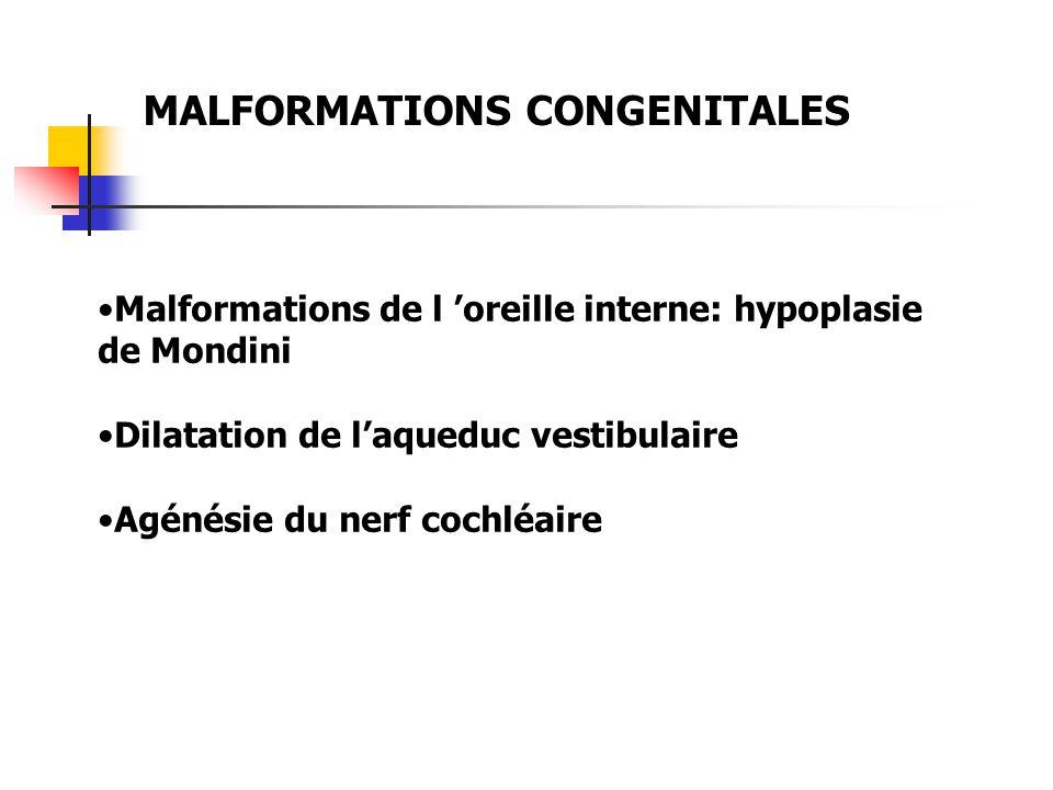 MALFORMATIONS CONGENITALES Malformations de l oreille interne: hypoplasie de Mondini Dilatation de laqueduc vestibulaire Agénésie du nerf cochléaire