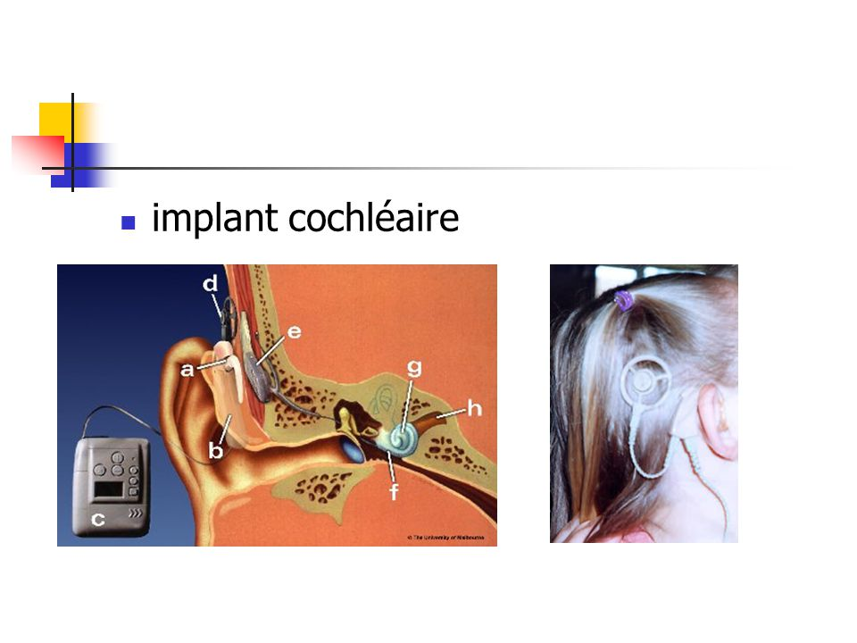 implant cochléaire