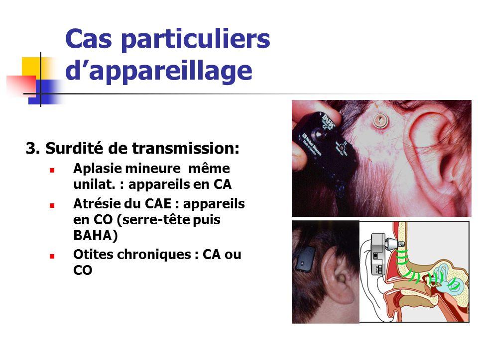 Cas particuliers dappareillage 3. Surdité de transmission: Aplasie mineure même unilat. : appareils en CA Atrésie du CAE : appareils en CO (serre-tête