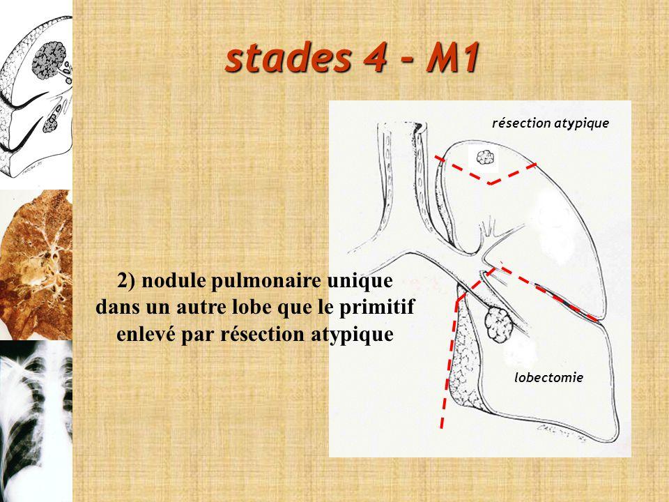 2) nodule pulmonaire unique dans un autre lobe que le primitif enlevé par résection atypique résection atypique lobectomie stades 4 - M1