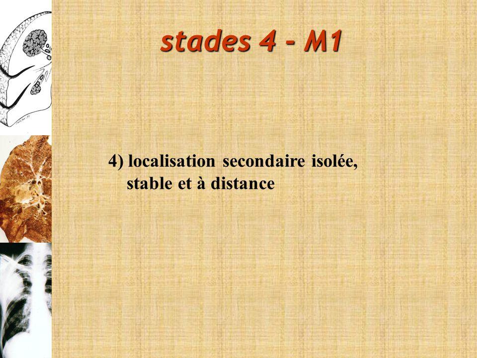 4) localisation secondaire isolée, stable et à distance stades 4 - M1