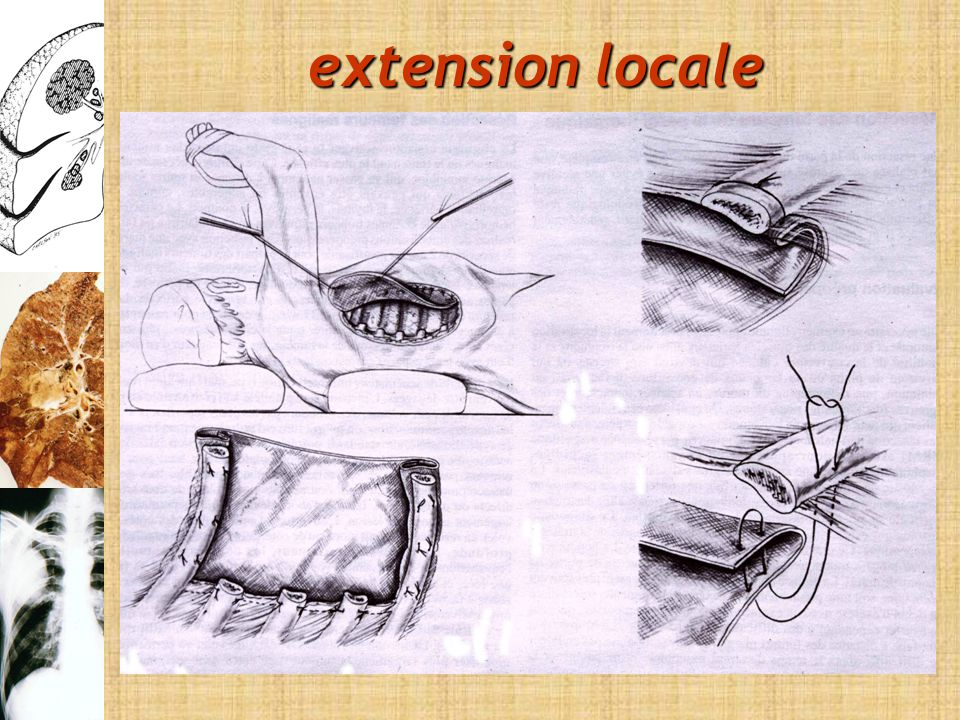 extension locale