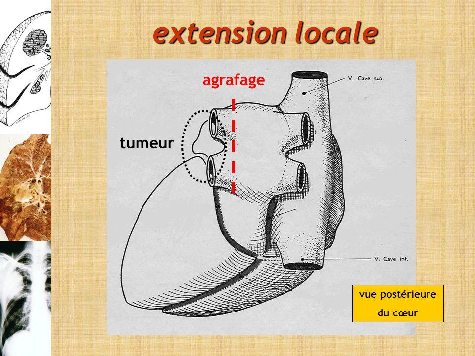 vue postérieure du cœur agrafage tumeur extension locale