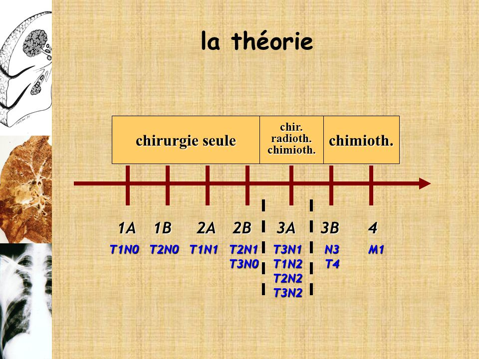 1A2B3A2A1B3B4 T1N0T2N0T1N1T2N1T3N0T3N1T1N2T2N2T3N2N3T4M1 chirurgie seule chir.radioth.chimioth.chimioth. la théorie