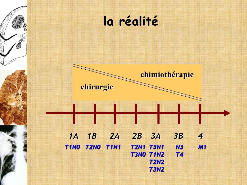 1A2B3A2A1B3B4 T1N0T2N0T1N1T2N1T3N0T3N1T1N2T2N2T3N2N3T4M1 chirurgie chimiothérapie la réalité