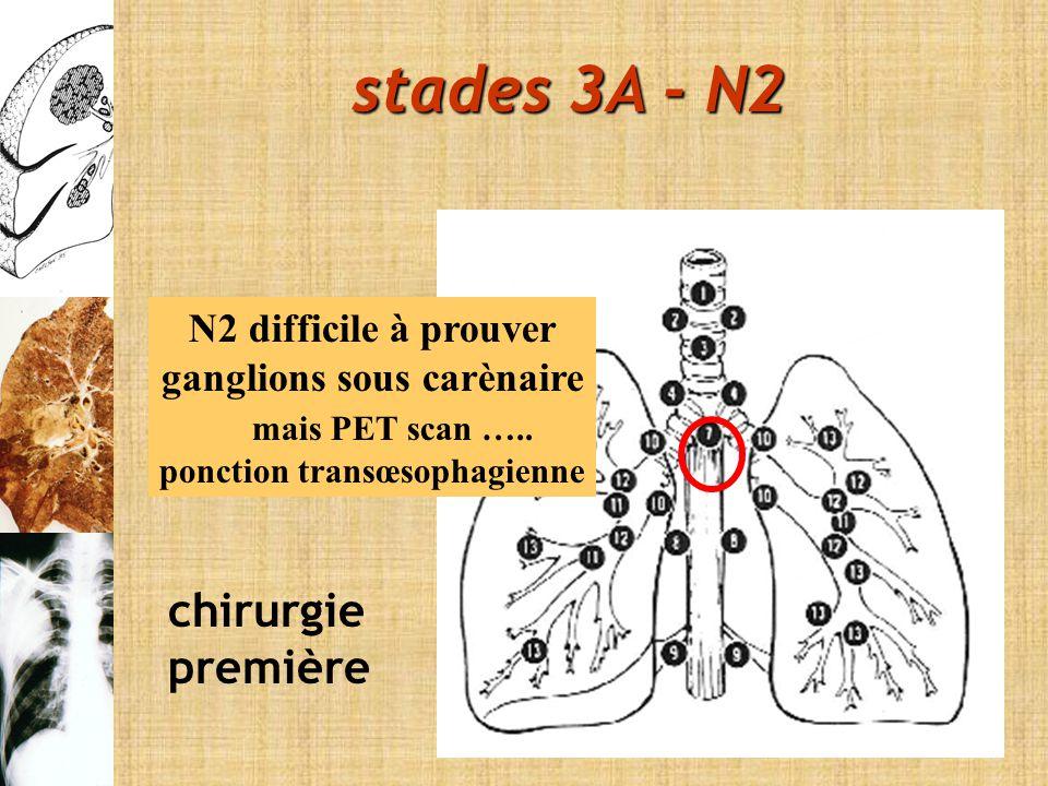 N2 difficile à prouver ganglions sous carènaire mais PET scan ….. ponction transœsophagienne chirurgie première stades 3A - N2