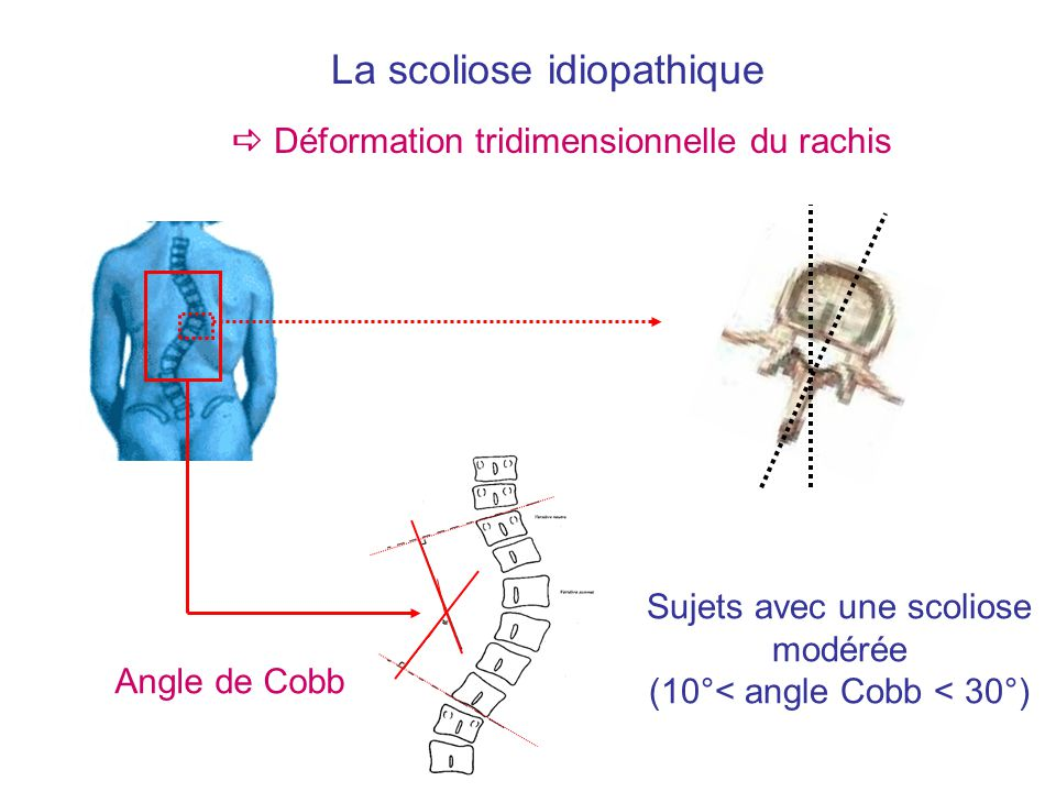 La scoliose idiopathique Déformation tridimensionnelle du rachis Angle de Cobb Sujets avec une scoliose modérée (10°< angle Cobb < 30°)