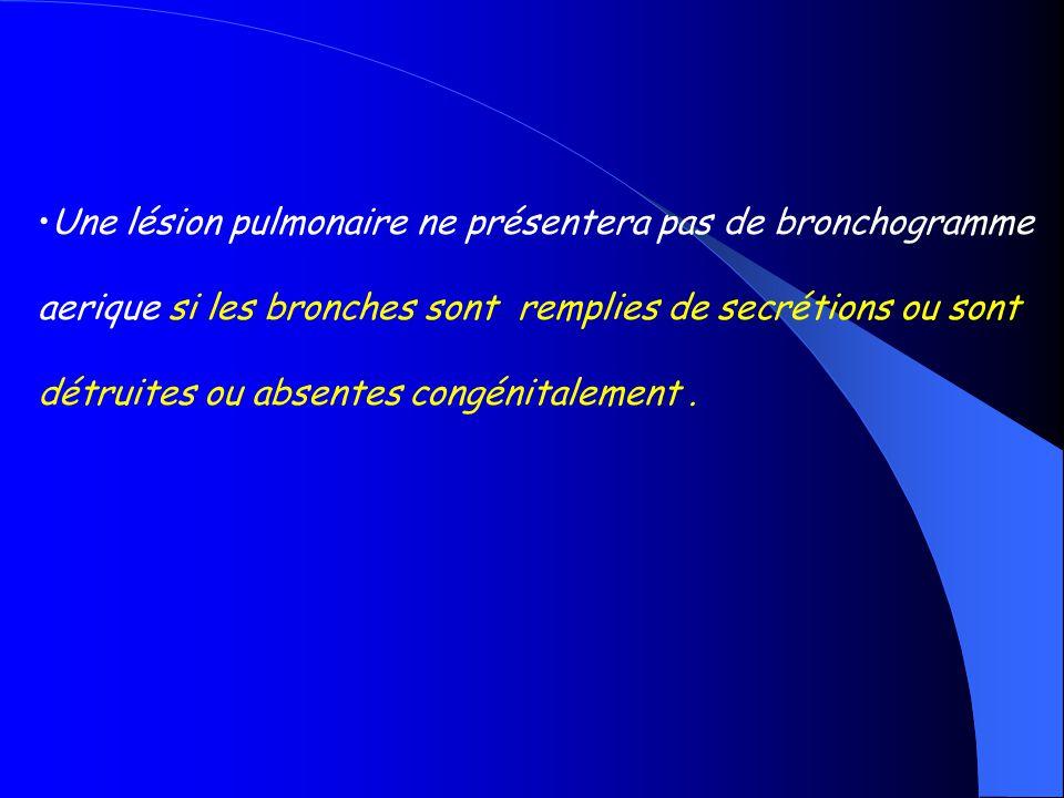 Une lésion pulmonaire ne présentera pas de bronchogramme aerique si les bronches sont remplies de secrétions ou sont détruites ou absentes congénitale