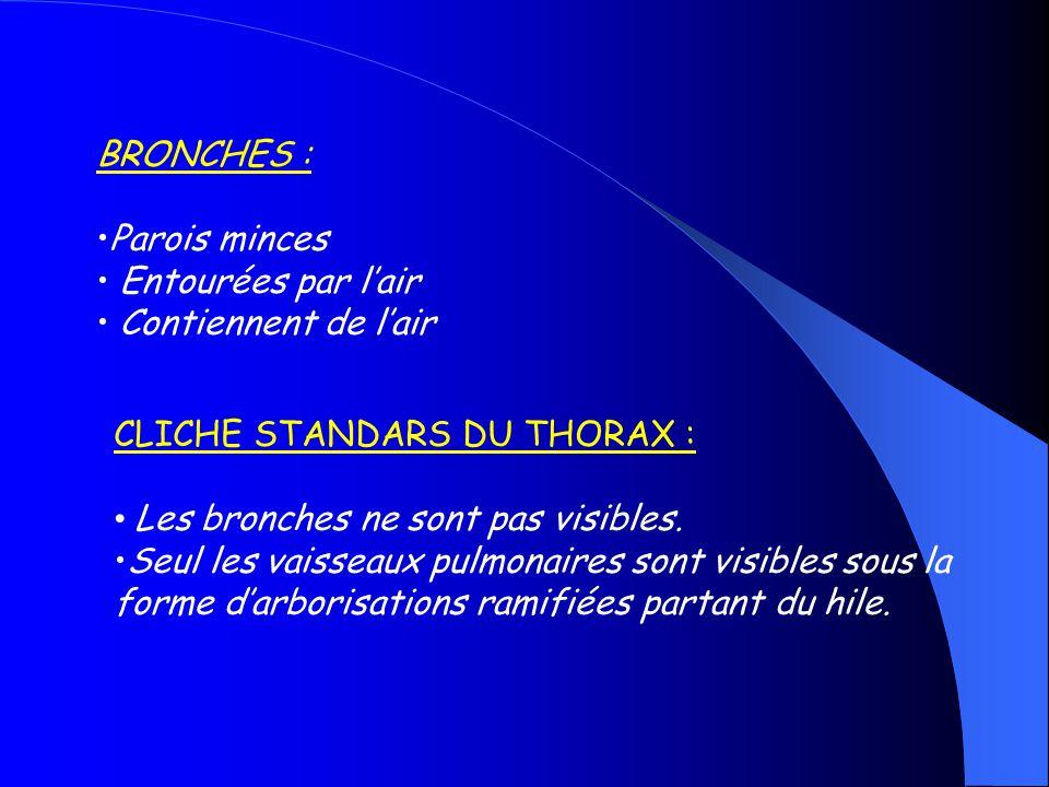 AUTRES APPLICATIONS DU SIGNE DE BRONCHOGRAMME AERIQUE : Des bronches accolées indiquent une atélectasie Segmentaire ou lobaire.