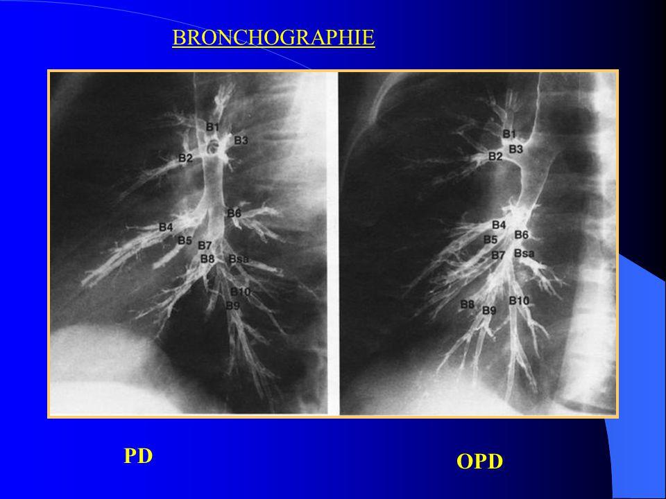 Le bronchogramme aerique : Dénote une lésion pulmonaire.