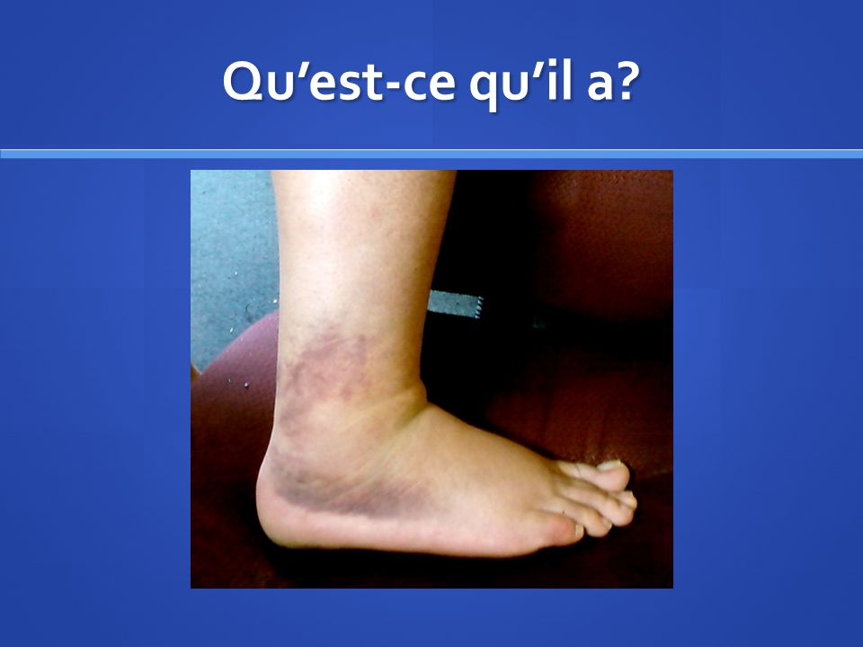 Quest-ce quil a