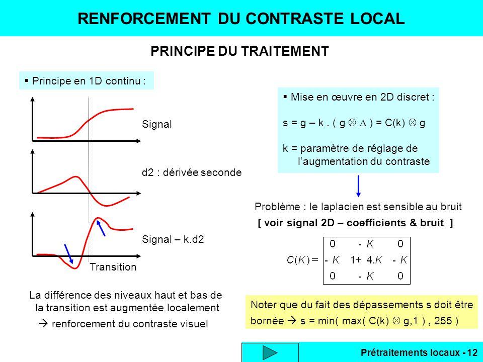 Prétraitements locaux - 12 PRINCIPE DU TRAITEMENT RENFORCEMENT DU CONTRASTE LOCAL Principe en 1D continu : Signal d2 : dérivée seconde Signal – k.d2 T