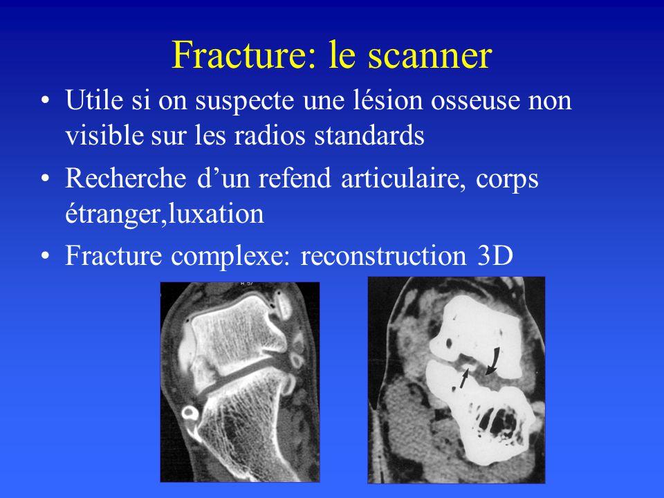 Fracture: le scanner Utile si on suspecte une lésion osseuse non visible sur les radios standards Recherche dun refend articulaire, corps étranger,lux