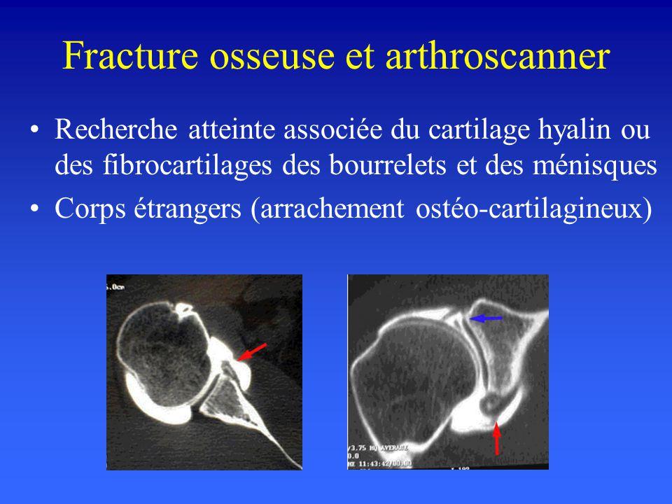 Recherche atteinte associée du cartilage hyalin ou des fibrocartilages des bourrelets et des ménisques Corps étrangers (arrachement ostéo-cartilagineu