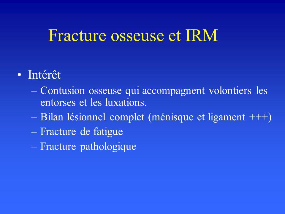 Fracture osseuse et IRM Intérêt –Contusion osseuse qui accompagnent volontiers les entorses et les luxations. –Bilan lésionnel complet (ménisque et li