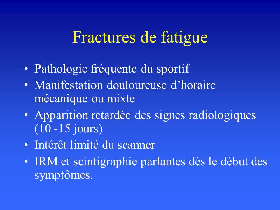 Fractures de fatigue Pathologie fréquente du sportif Manifestation douloureuse dhoraire mécanique ou mixte Apparition retardée des signes radiologique