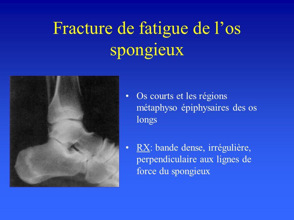 Fracture de fatigue de los spongieux Os courts et les régions métaphyso épiphysaires des os longs RX: bande dense, irrégulière, perpendiculaire aux li