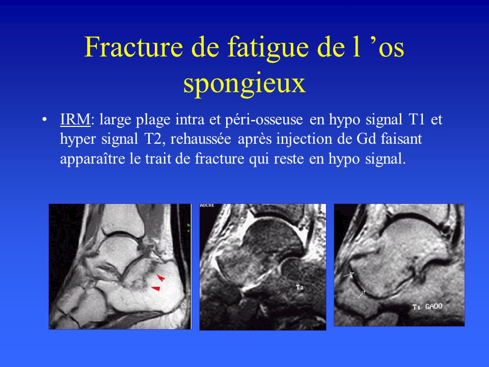 Fracture de fatigue de l os spongieux IRM: large plage intra et péri-osseuse en hypo signal T1 et hyper signal T2, rehaussée après injection de Gd fai