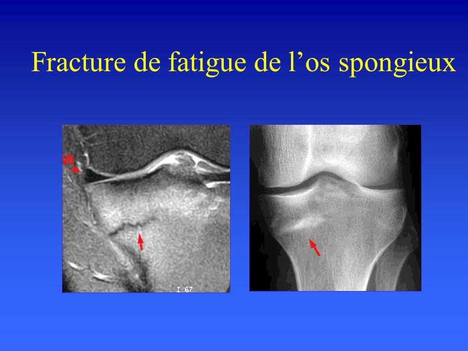 Fracture de fatigue de los spongieux