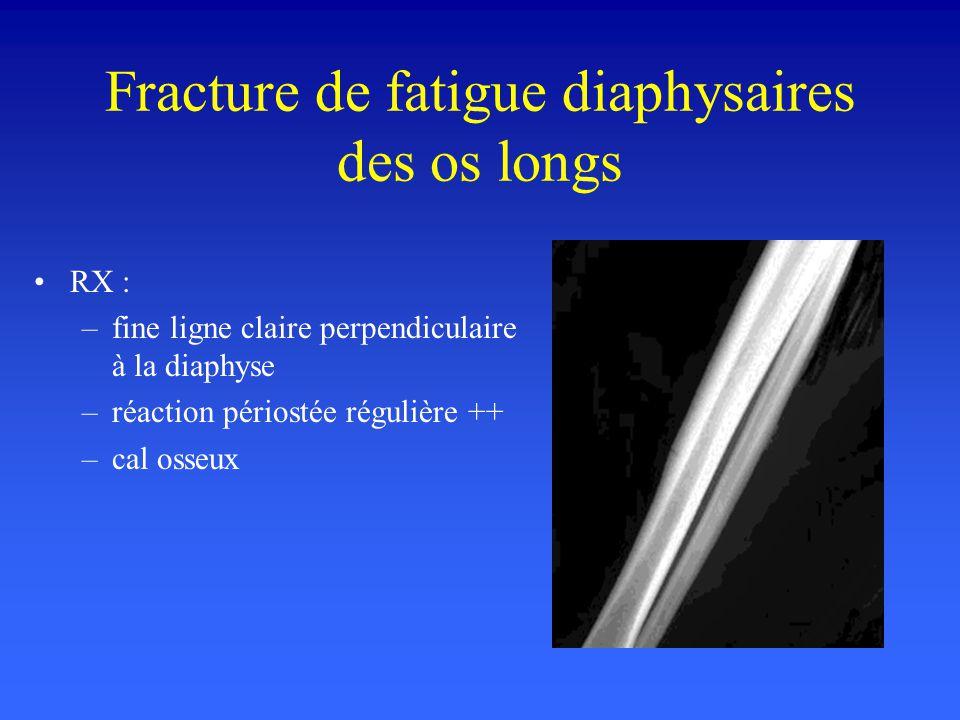 Fracture de fatigue diaphysaires des os longs RX : –fine ligne claire perpendiculaire à la diaphyse –réaction périostée régulière ++ –cal osseux