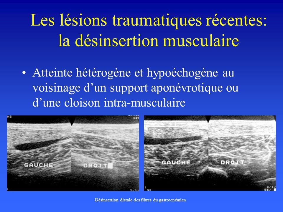Les lésions traumatiques récentes: la désinsertion musculaire Atteinte hétérogène et hypoéchogène au voisinage dun support aponévrotique ou dune clois