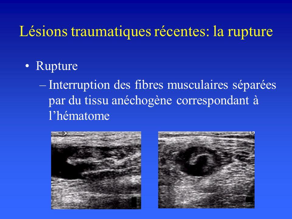 Lésions traumatiques récentes: la rupture Rupture –Interruption des fibres musculaires séparées par du tissu anéchogène correspondant à lhématome