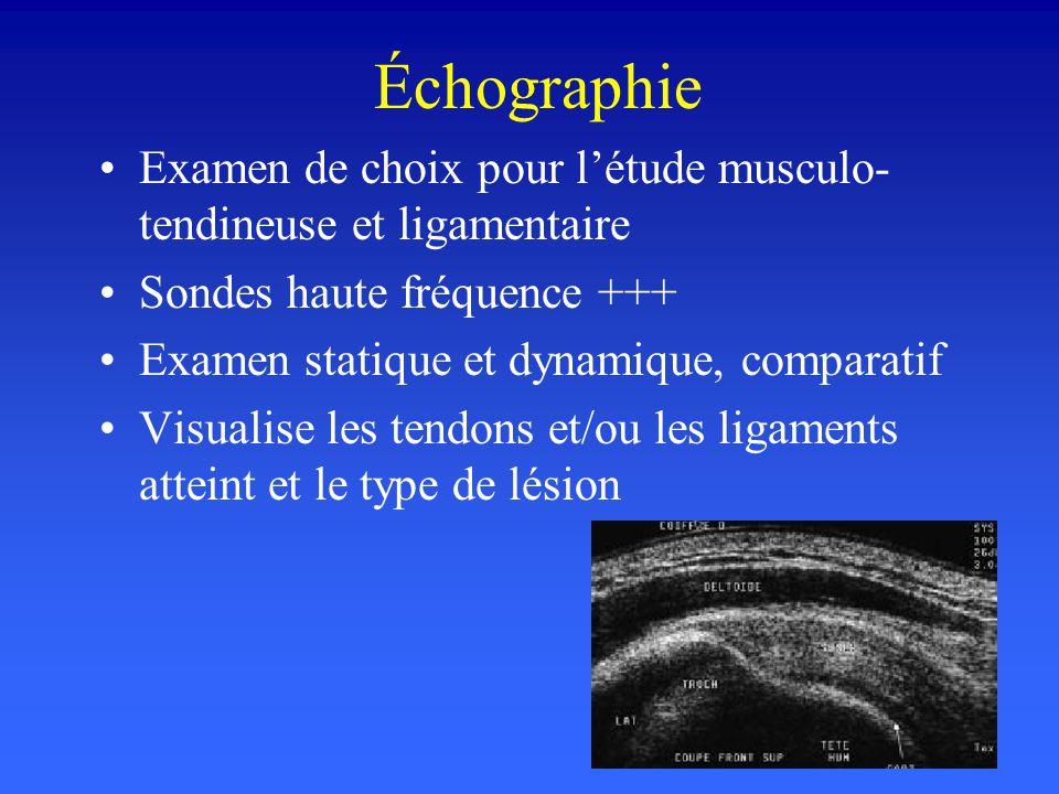 Échographie Examen de choix pour létude musculo- tendineuse et ligamentaire Sondes haute fréquence +++ Examen statique et dynamique, comparatif Visual