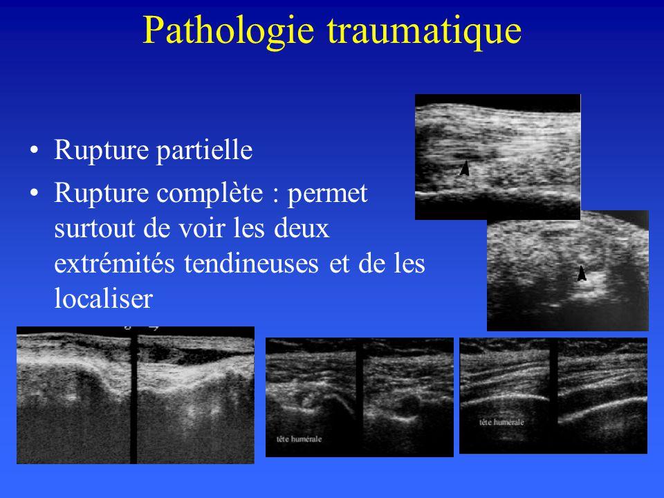 Pathologie traumatique Rupture partielle Rupture complète : permet surtout de voir les deux extrémités tendineuses et de les localiser