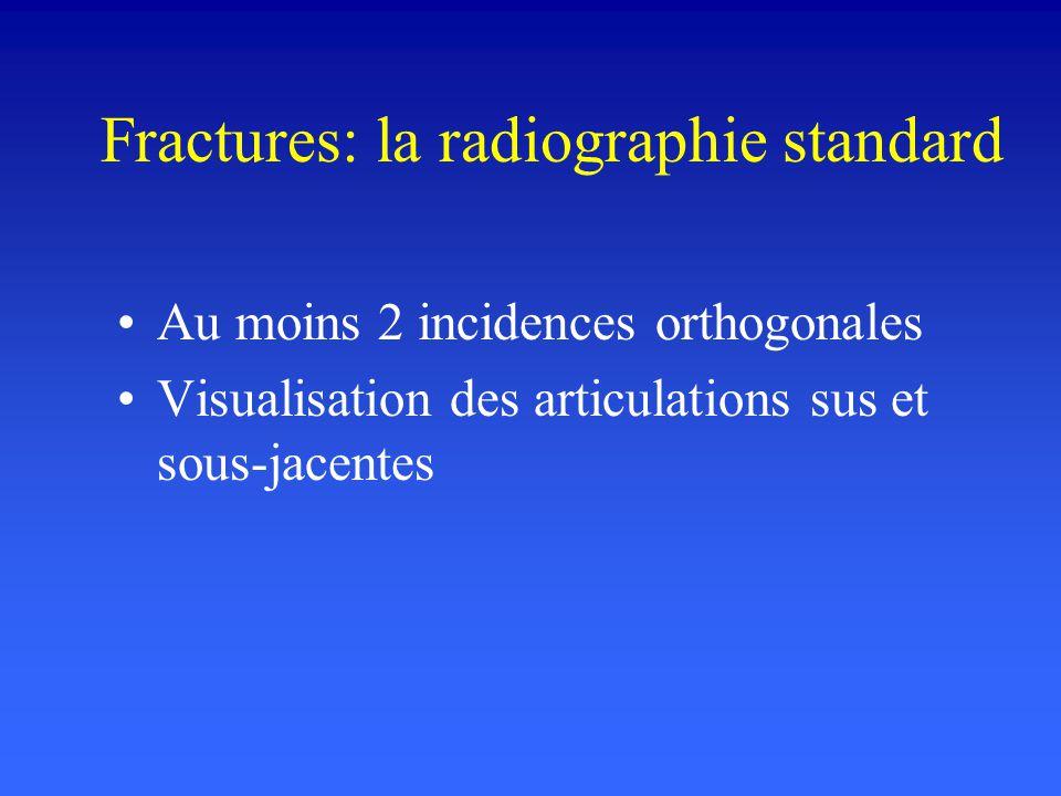 Fractures: la radiographie standard Os long ou plat, localisation Type: trait unique, fracture multifocale Stabilité de la fracture –Orientation du trait: transversale, oblique, spiroïde –Déplacement ou non Refend intra-articulaire ou non, déformation articulaire Fracture sur os pathologique
