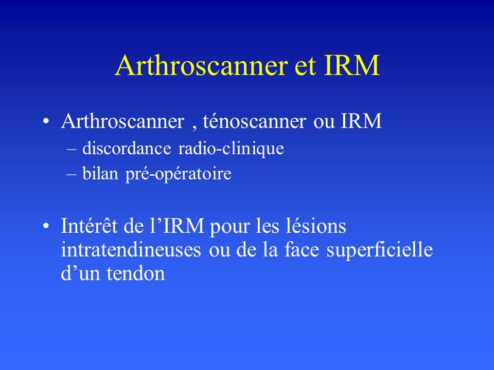 Arthroscanner et IRM Arthroscanner, ténoscanner ou IRM –discordance radio-clinique –bilan pré-opératoire Intérêt de lIRM pour les lésions intratendine