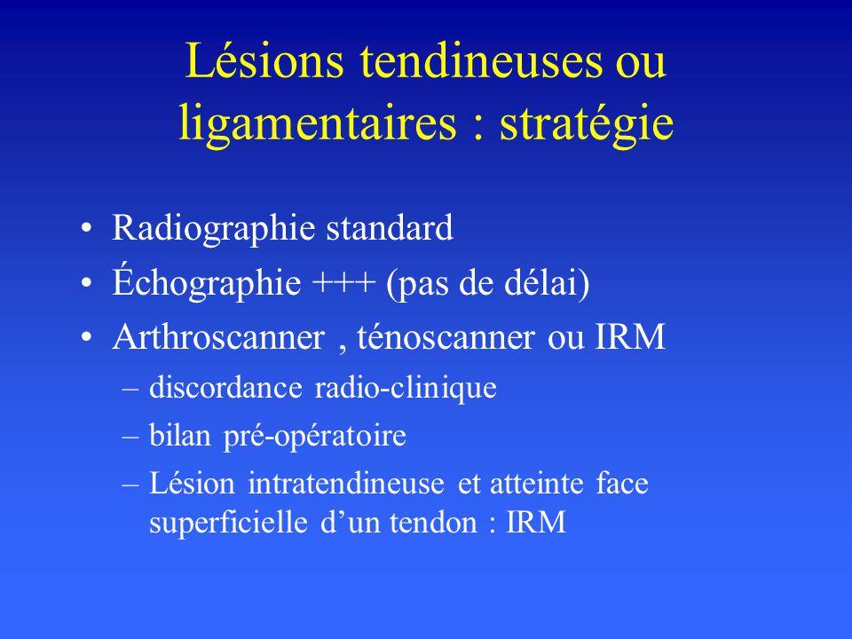 Lésions tendineuses ou ligamentaires : stratégie Radiographie standard Échographie +++ (pas de délai) Arthroscanner, ténoscanner ou IRM –discordance r