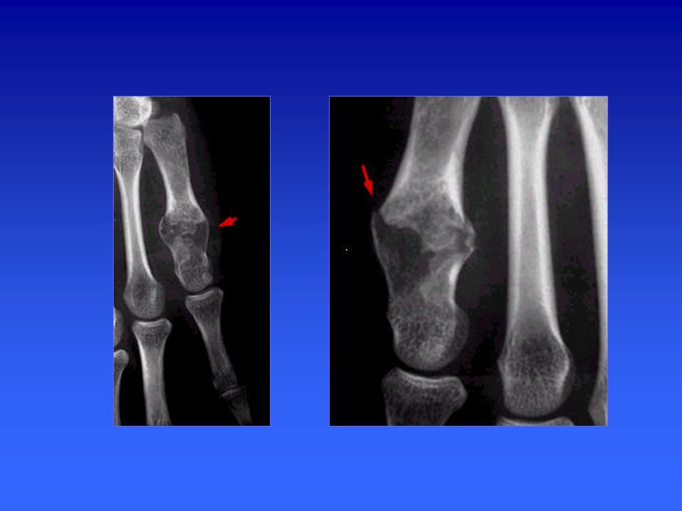 Fractures de fatigue diaphysaires des os longs