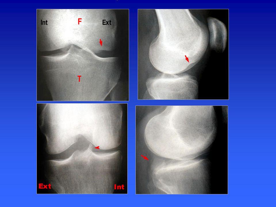 Fracture-tassement du condyle externe –Profondeur normale du sillon condylo-trochléen externe < 1.2 mm –Si > 1.5 mm, quasi pathognomonique de rupture du LCA –Peu sensible