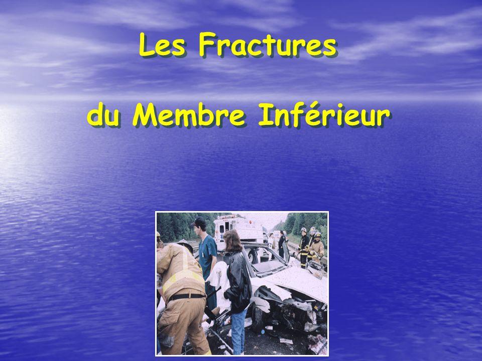 Les Fractures du Membre Inférieur