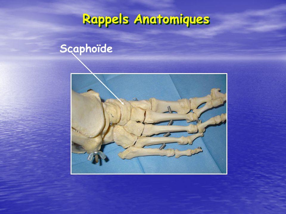 Scaphoïde