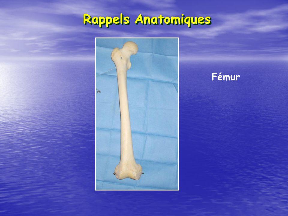 Décrivez la déformation clinique typique dune fracture du col du fémur Adduction + Rotation Externe + Raccourcissement