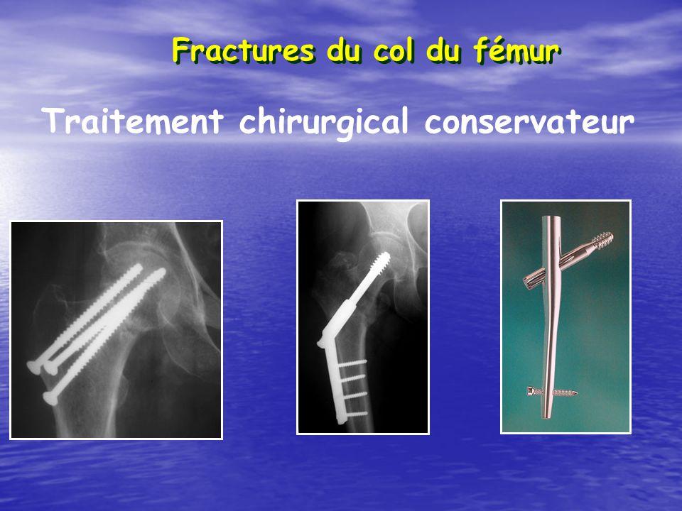 Fractures du col du fémur Traitement chirurgical conservateur
