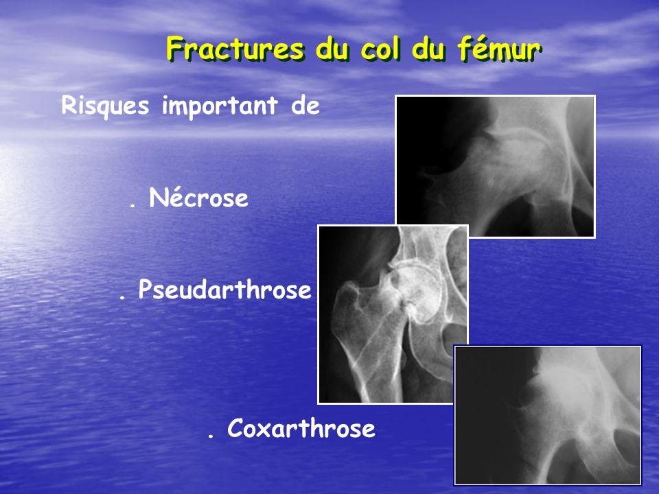 Fractures du col du fémur Risques important de. Nécrose. Pseudarthrose. Coxarthrose