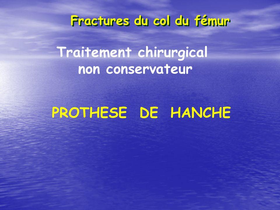 Fractures du col du fémur Traitement chirurgical non conservateur PROTHESE DE HANCHE