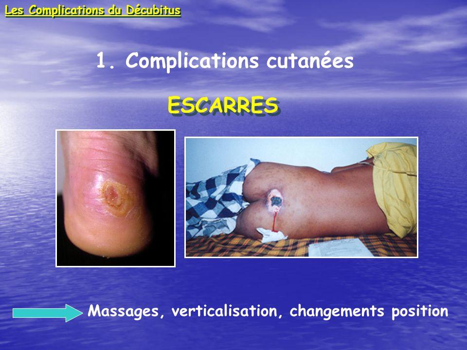 1. Complications cutanées ESCARRES ESCARRES Massages, verticalisation, changements position Les Complications du Décubitus