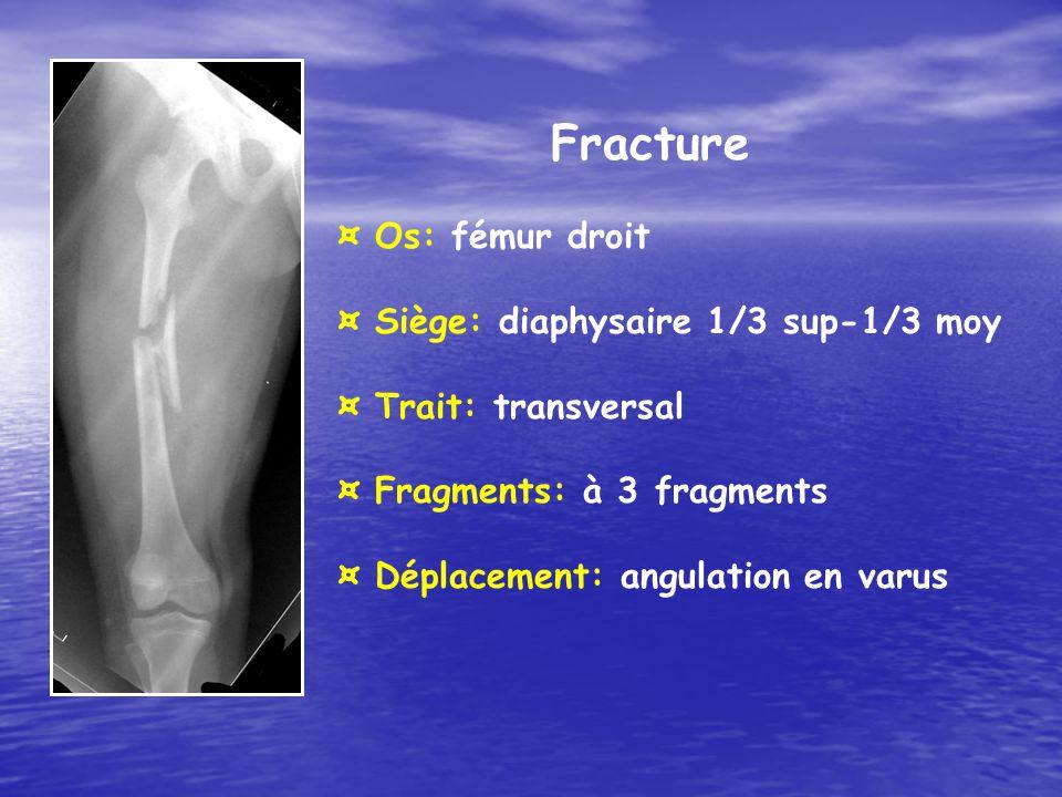 Fracture ¤ Os: fémur droit ¤ Siège: diaphysaire 1/3 sup-1/3 moy ¤ Trait: transversal ¤ Fragments: à 3 fragments ¤ Déplacement: angulation en varus