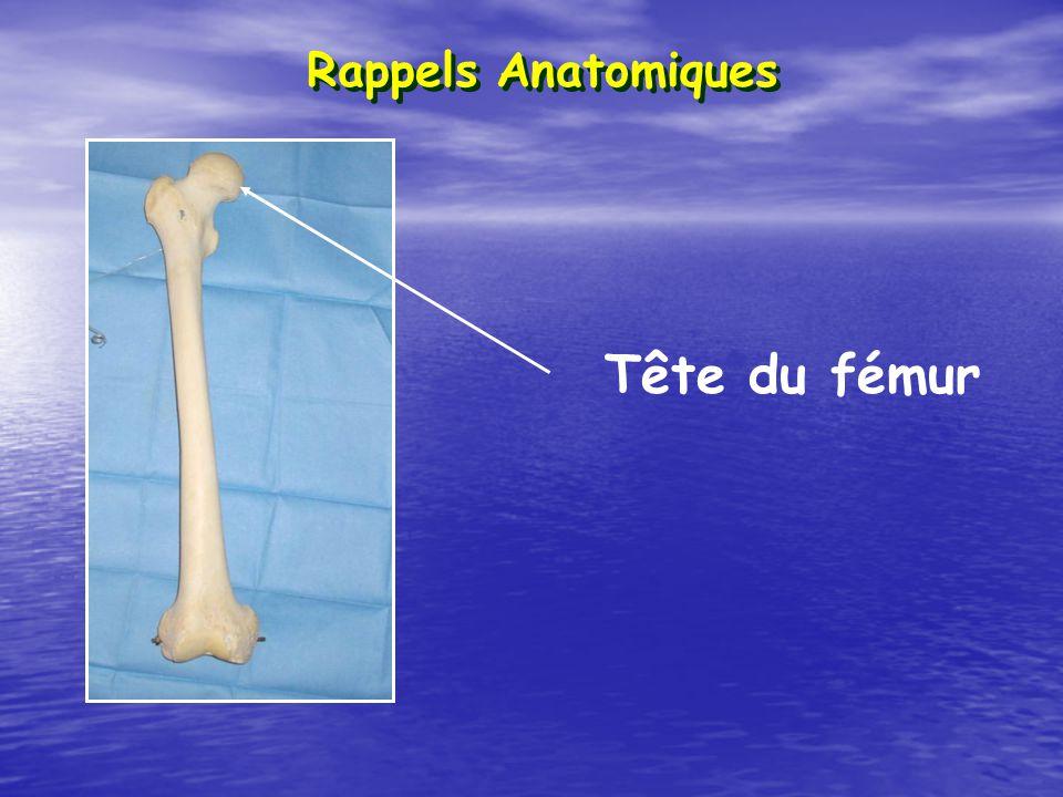 Raccourcissement + Adduction + Rotation externe Déplacement Sujet âgée +++ (trauma mineur) Sujet jeune (trauma majeur) Fractures du col du fémur