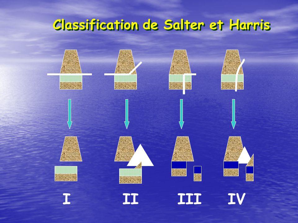 Classification de Salter et Harris I II III IV