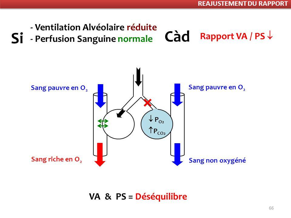 66 P CO2 P O2 VA & PS = Déséquilibre Sang pauvre en O 2 Sang riche en O 2 Sang non oxygéné - Ventilation Alvéolaire réduite - Perfusion Sanguine normale Si Càd Rapport VA / PS Rapport Ventilation Perfusion REAJUSTEMENT DU RAPPORT