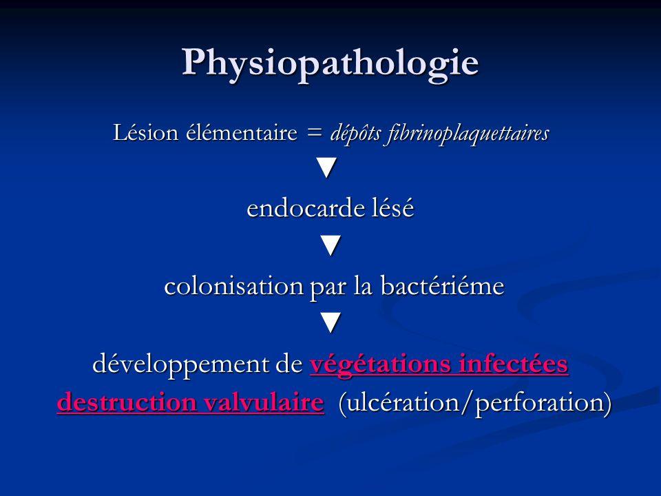 Physiopathologie Lésion élémentaire = dépôts fibrinoplaquettaires endocarde lésé colonisation par la bactériéme colonisation par la bactériéme dévelop
