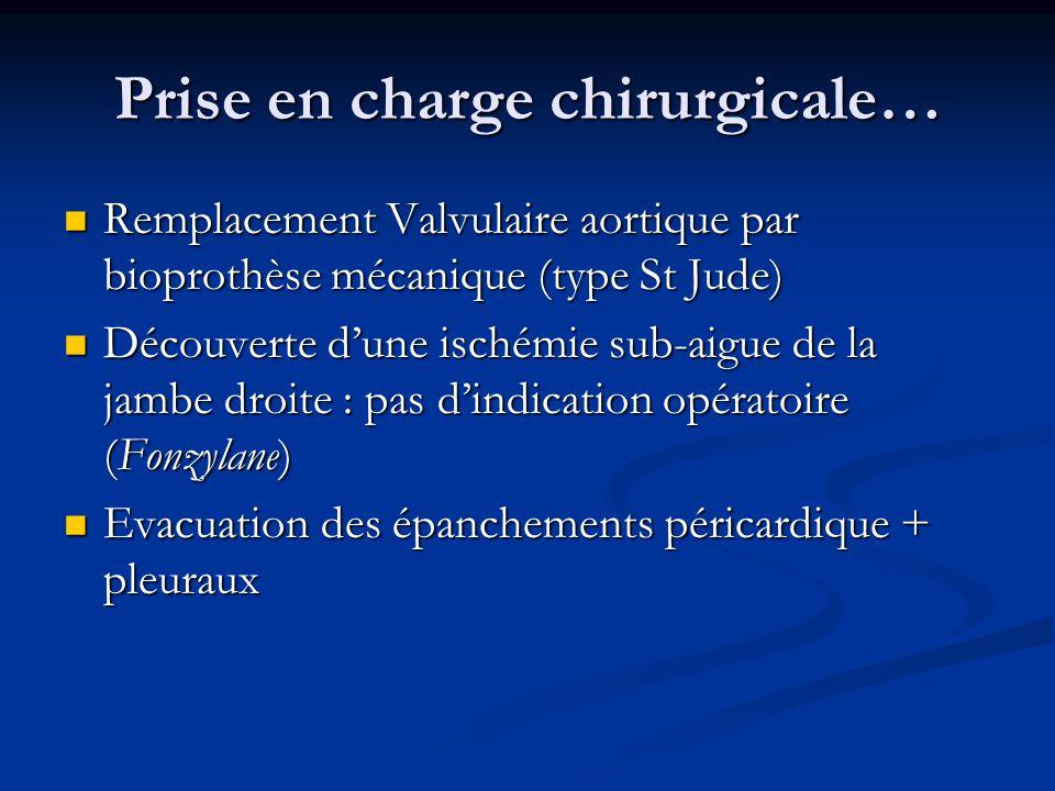 Prise en charge chirurgicale… Remplacement Valvulaire aortique par bioprothèse mécanique (type St Jude) Remplacement Valvulaire aortique par bioprothè